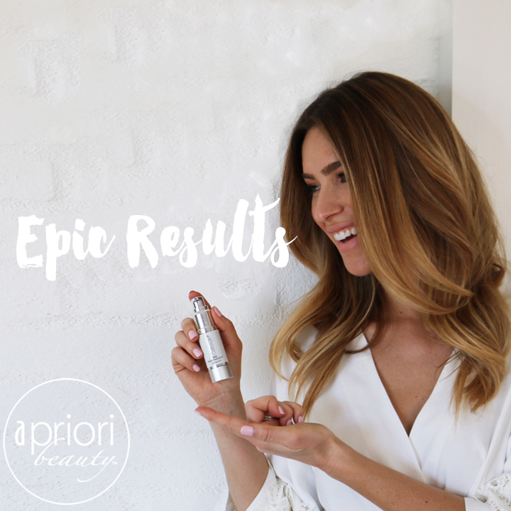 epic results